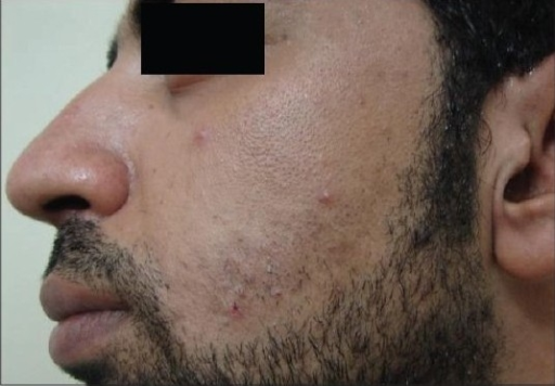 Patient 1 with the IPL-treated side before treatment