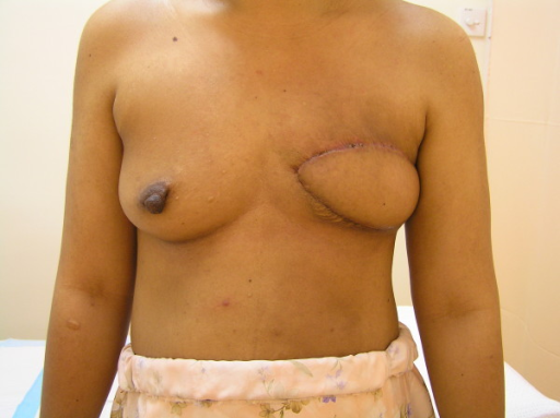 Four months after surgery. Anterior view of the breast four months after the mastectomy and immediate latissimus dorsi reconstruction.