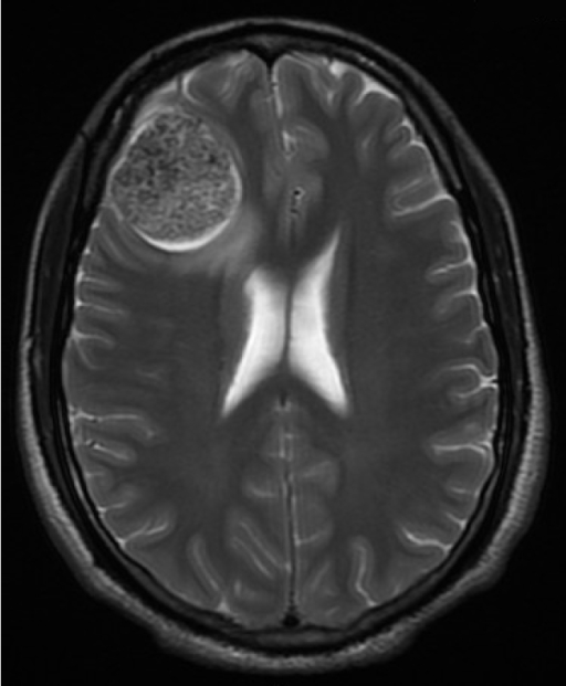 A right frontal lobe tumor. Magnetic resonance imaging | Open-i