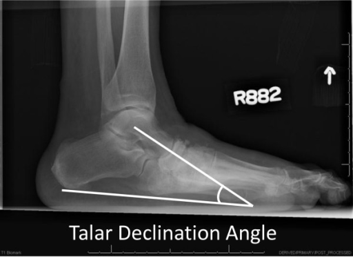 Talar declination angle formed by the line representing | Open-i
