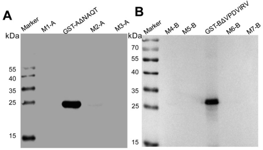 Identification of cross-reactivity of mAb 1F4 or 1H3-1 to the associated coding motif of heterologous ARV, DRV and TRV strains.Marker: PageRulerTM Prestained Protein Ladder; GST-AΔNAQT containing the epitope A: KTPACW; M1-A: RSPACW; M2-A: RAPACW; M3-A: RTPACW; GST-BΔVPDVIRV containing the epitope B: WDTVTFH; M4--B: WDIEEFH; M5-B: WDSDIFH; M6-B: WNIETFH; M7-B: WDVETFH.