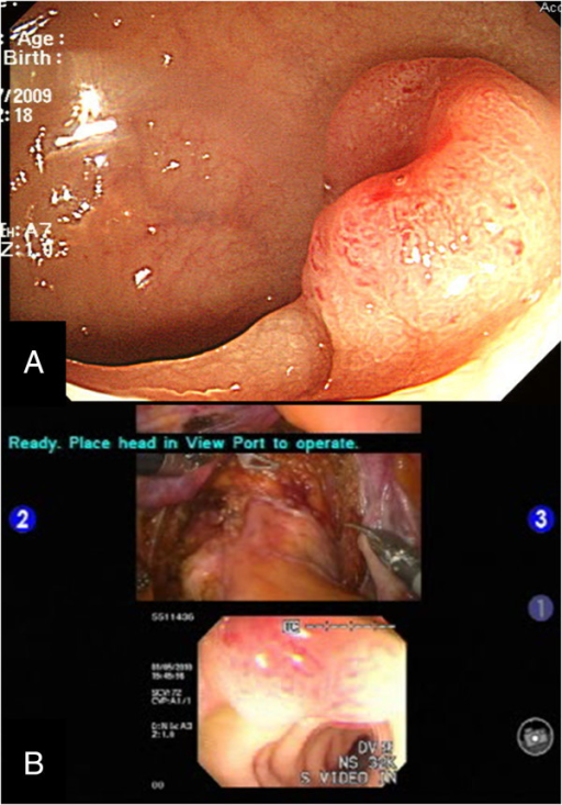 Preoperative colonoscopy and multi-input view of intraoperative colonoscopy. (A) The preoperative colonoscopic image. (B) Images from the intraoperative colonoscopy for tumor localization are visualized simultaneously with the intraabdominal extraluminal view for accurate determination of the distal rectal margin.