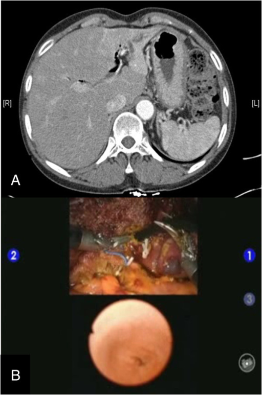 Images from a preoperative abdominal CT scan and multi-input view of intraoperative common bile duct exploration. A preoperative CT scan of the patient with cholangiohepatitis shows intrahepatic ductal dilatation and left lobe atrophy (A). Intraoperative robot-assisted common bile duct exploration was facilitated by simultaneous visualization of the images from the choledochoscopy on the surgeon's console (B).