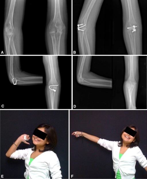 (A) This is a preoperative radiograph of a 9-year-old girl who has juvenile rheumatoid arthritis with 6 months' duration of complete loss of elbow motion. The elbow was fixed in full extension, having failed all forms of conservative treatment. (B) After full release and takedown of an early synostosis, the elbow was stabilized with the joint stabilizer implant. (C) At 4 weeks, a painful proximal screw head and implant prominence were delaying rehabilitation; therefore, the proximal screw and proximal part of the implant were removed. (D) Radiographic images of the elbow 2 years after the final removal of the implant are shown. (E) Elbow flexion and (F) extension are shown 2 years postimplant removal.