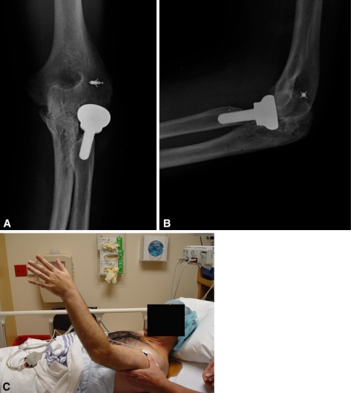 A 38-year-old man presents with ulnohumeral synostosis after complex trauma and multiple surgeries. (A) A preoperative AP and (B) lateral view are shown. (C) The elbow is fused in 45° of extension.