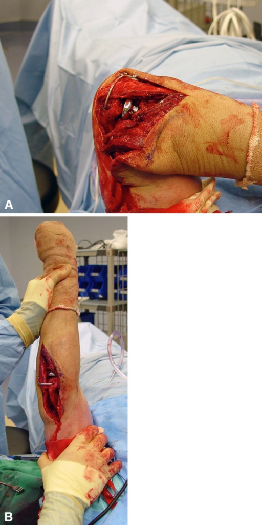 (A) Intraoperative assessment was performed for restoration of flexion, (B) extension and stability in all directions.