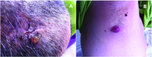 Clinical photograph showing (A) a lump on the top of the head and (B) a purple, protruding lump in the right armpit.