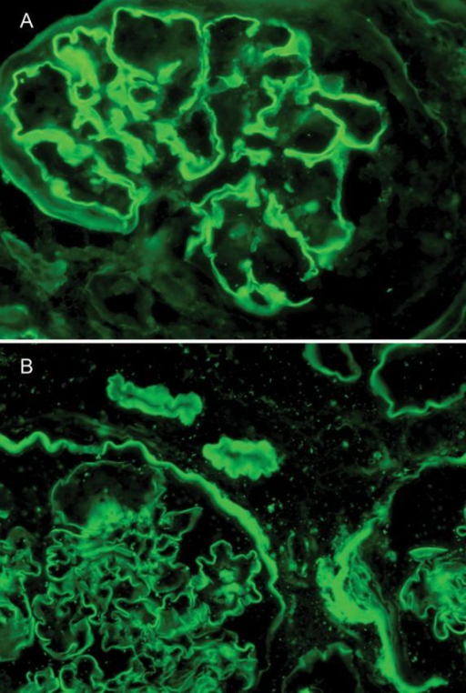 (A) Direct immunofluorescence shows strong linear GBM staining for IgG. BC and tubular BM are negative. (B) In contrast, albumin shows strong staining of GBM, BC and TBM. Original magnification ×400.