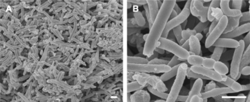 Scanning electron micrographs of microbial cells derived from the reactor for H2 production. Bar, 1 μm.
