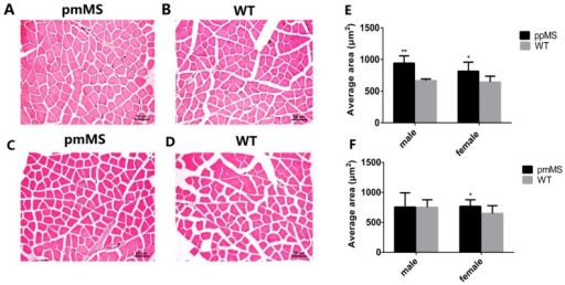 Analysis of myofiber cell size of gastrocnemius from transgenic and WT mice at the age of 30 weeks. (A) Muscle cross-sections from pmMS transgenic female mice; (B) Muscle cross-sections from WT female mice; (C) Muscle cross-sections from pmMS transgenic male mice; (D) Muscle cross-sections from WT male mice; (E) Comparsion of average muscle size between ppMS transgenic mice (male: n = 5; female: n = 5) and WT mice (male: n = 8; female: n = 6) and (F) Comparsion of average muscle size between pmMS transgenic mice (male: n = 5; female: n = 5) and WT mice (male: n = 8; female: n = 6). Scale bars = 50 μm; *p < 0.05,**p < 0.01.