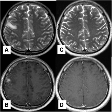 Magnetic resonance imaging of the brain. a-b T2W and T1W with Gadolinium contrast images on September 17, 2013. MRI scan showed hypersignal intensity and gyral contrast enhancement at the right frontal lobe lesion. c-d On February 17, 2014, after steroid initiation, MRI scan showed complete resolution of the right frontal lobe lesion