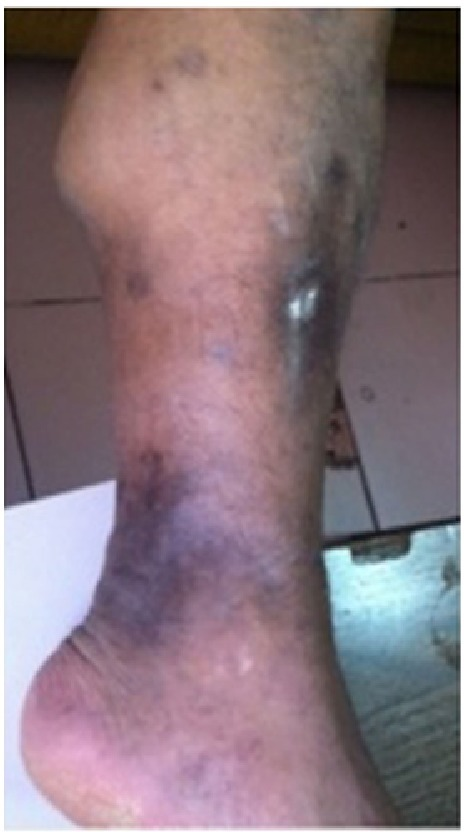 Hyperpigmented scars in extensor and lateral part of leg, 60 × 91 mm.