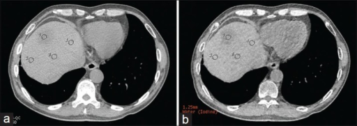 True noncontrast image (a) and virtual noncontrast arterial image; (b) one ROI was set at hepatic metastasis (arrow) when contrast-to-noise ratio was measured, and three consistent region of interests were set at normal liver.