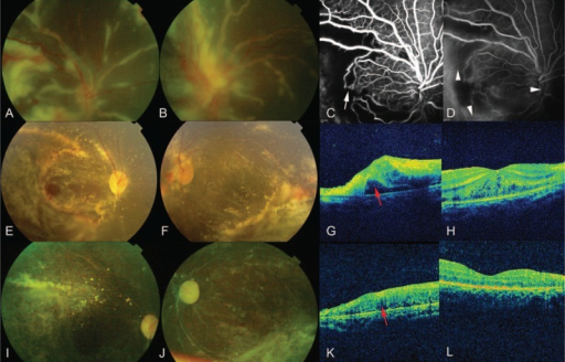 "Imaging charaterization of FBA. A, B, Bilateral funduscopy showed FBA, retinal edema, hemorrhages, and papilledema. C, D, FFA showed tortuous and dilated retinal veins, arteriolar-venular anastomoses (white arrow), arterial occlusion (white arrow head), capillary nonperfusion and vascular leakage. G, H, OCT showed macular edema and retinal detachment (red arrow). E, F, After 2 weeks, vascular sheathing resolved, leaving hard exudates. K, L, OCT images also improved. I, J, After 3 months, pale optic nerve heads, retinal vessels with a ""silver wire"" appearance, crystalline deposits, and peripheral atrophic depigmentation were observed. FBA = frosted branch angiitis, FFA = fundus fluorescein angiography, OCT = optical coherence tomography."