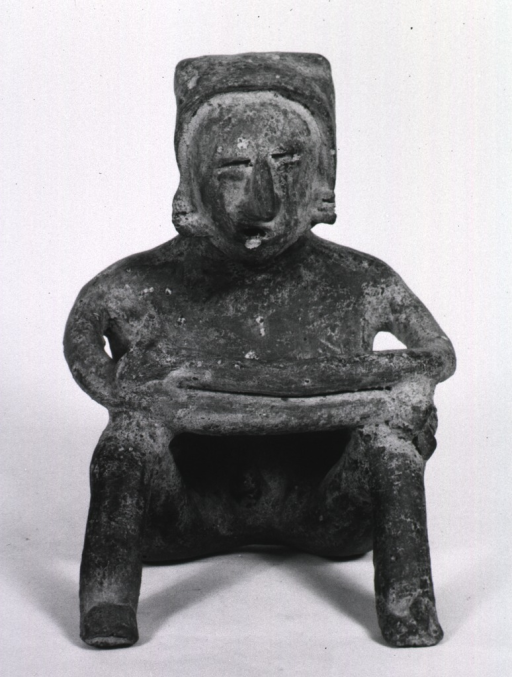 <p>Sculpture:  Seated male figure with knobby growth in cervical area of the spine; hands resting on knees.</p>