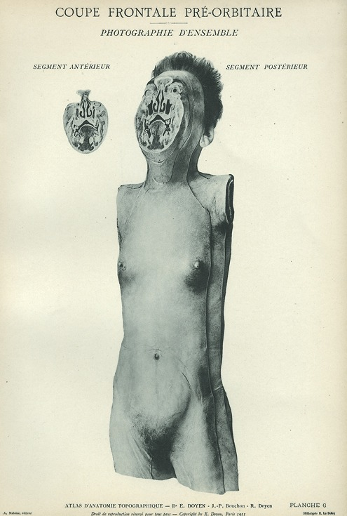 <p>Image of anterior and posterior views of man's body, with cross-sectional image of the face. Issued in seven installments by the flamboyant Parisian surgeon Eugene-Louis Doyen (1859-1916), this atlas of 279 &quot;heliotyped&quot; photographic plates of cross-sectioned bodies was a radical departure from past practice. Atlas d'anatomie topographique. Planche 6.</p>