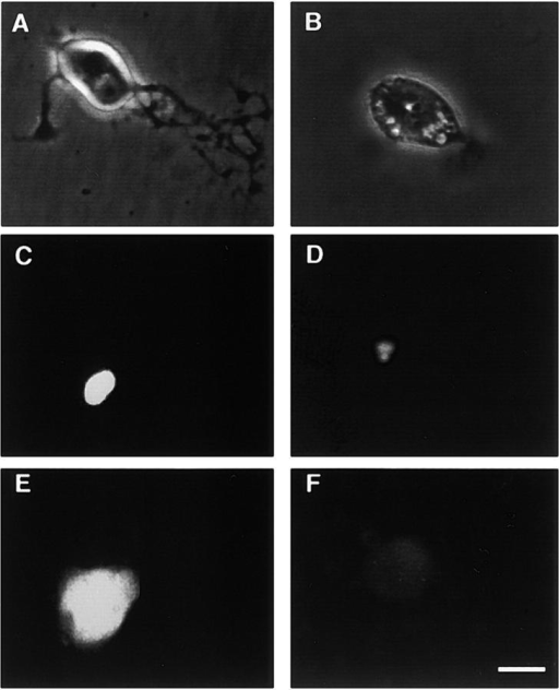 Micrographs of adult SCG neurons in culture. The neurons grown overnight and receiving no further treatment (A and C) or treated for 45 min with 20 μM LY294002 (B and D) are shown in phase-contrast optics (A and B) or stained with the fluorescent nuclear dye DAPI (C and D). (E). Bcl-xL staining in neurons injected 12 h earlier with an empty expression plasmid. (F). Bcl-xL staining in neurons injected 12 h earlier with a plasmid expressing antisense Bcl-xL RNA. Bar, 10 μM.