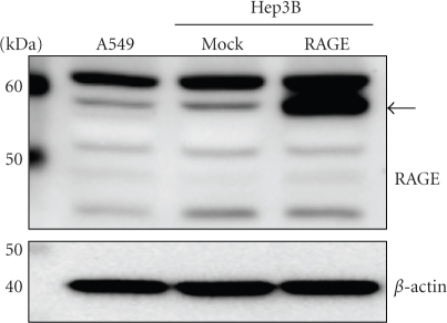 RAGE expression by Western blot analysis. Cell lysates (30 μg of proteins/lane) were loaded onto a 10% polyacrylamide gel. Size markers (kDa) are shown on the left. Equal protein loading was estimated using anti-β-actin antibody. The arrow indicates full-length RAGE.