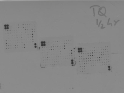 Effect of TQ on release of various cytokines was determined using RayBio Human Cytokines Antibody Array C Series 2000. TQ treated cell media was applied to cytokine membranes which were then exposed to a photographic film for 30 minutes and developed in a dark room. The three membranes represent various cytokines whose presence can be detected using this technique. Dots represent presence or absence of various cytokines which were then quantitated using image J Software expressed as mean integrated density.