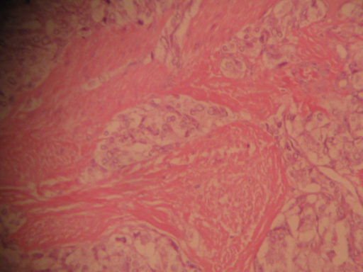 The tumor cells invade the muscular layer (hematoxylin and eosin ×100).