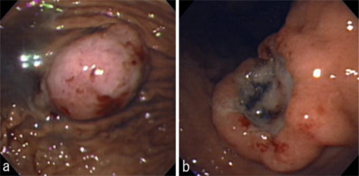 Upper gastrointestinal endoscopy revealed two submucosal tumors: a polypoid tumor located at the anterior wall of the middle body (a) and an ulcerated tumor located at the posterior wall of the middle body (b).