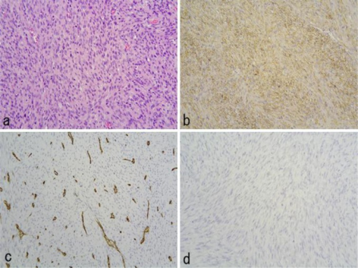 Histopathological examination of the gastric tumor showed spindle cells with marked pleomorphism by hematoxylin-eosin staining (×200). The number of mitotic figures was 40–50 per 10 high-power fields (a). Histochemical staining of the gastric tumor was positive for SMA (b), negative for CD34 (c) and negative for c-kit (d) by immunohistological staining (×200).