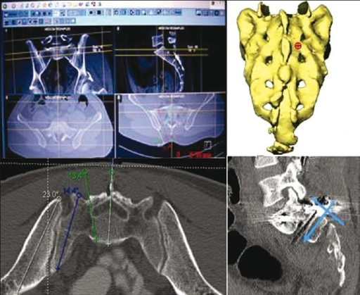 CT scan images showing use of annotation tools for trajectory of screw in axial and sagittal plane