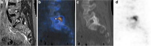 Fifty-five-year-old female patient (patient number 4). Patient with fluid within the left facet joint S1 (arrow) on MRI and corresponding increased activity on F PET/CT (arrowhead) indicating activated degenerative facet joint osteoarthritis. Left parasagittal STIR (a), fused PET/CT (b), CT (c), and PET (d) images.