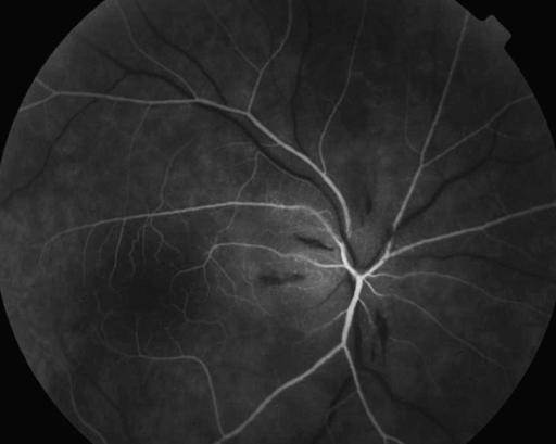 Fluorescein angiography of the right eye arterial phase (AION) – margins of the disc nonvisible. Lack of perfusion in all sectors except temporal part of the disc.