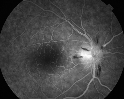 Fluorescein angiography of the right eye venous phase (AION) – leakage from disc capillaries and optic nerve hyperfluorescence is more visible in and beyond margins of the disc.