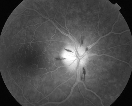 Fluorescein angiography of the right eye late stage (AION) – the dye leaks only from the affected part of the optic disc head.