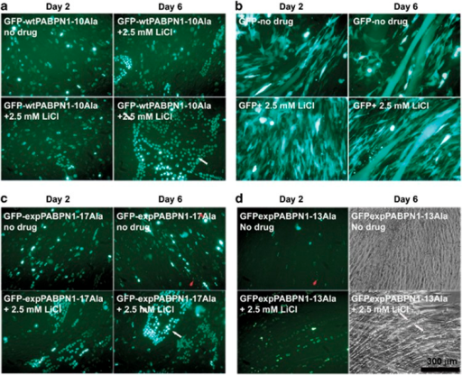 LiCl enhances cell proliferating and differentiation of C2C12 cells transfected with GFP-expPABPN1-17Ala. (a and b) The effect of LiCl treatment on OPMD C2C12 cell model controls. LiCl maintains the ability of cells expressing GFP-wtPABPN1-10Ala (a) and GFP (b) to proliferate and differentiate over the time course. Cells were transiently transfected with GFP-wtPABPN1-10Ala or GFP and treated with 2.5 mM LiCl for 6 days in DM. (c) LiCl protects against cell death and enhances the number of multinucleated differentiated myotubes as well as increasing their diameter's size (bottom panels). Cells were transiently transfected with GFP-expPABPN1-17Ala and treated with 2.5 mM LiCl for 6 days in DM. Cells were visualized daily under the live-stage microscope for morphology and viability. Representative images were captured on day 2 and day 6 post-treatment with the drug. (d) LiCl enhances muscle differentiation of C2C12 cells expressing GFP-expPABPN1-13Ala. Representative images showing the effect of LiCl on cell differentiation. LiCl increases the total number of multinucleated myotubes in cells expressing GFP-expPABPN1-13Ala (bottom left) compared with non-treated GFP-expPABPN1-13Ala cells (top left). Phase contrast image of myotubes treated with 2.5 mM LiCl (bottom right) shows the increased diameter size when compared with non-treated cells (top right) on day 6 after differentiation. White arrows point towards the myotube's diameter. Red arrowheads point towards dead cells or debris of dead cells