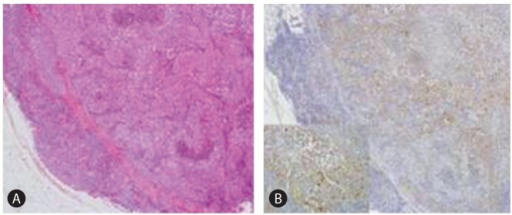 Microscopic findings of excisioned neck LN shows that (A) lymph node is replaced by tumor cell nests consisting of thick trabeculae with central tumor necrosis (H&E staining, ×40). (B) some tumor cells show positive reaction to HSA immunohistochemical staining. (observed under the high-power view (×200) in a box).