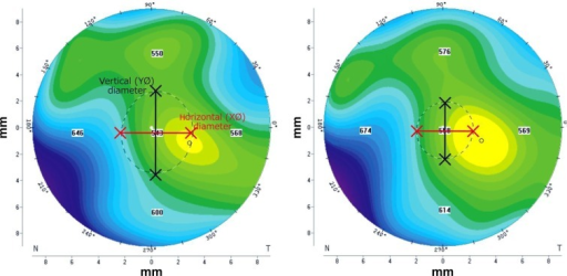 "Preoperative (left) and postoperative (right) ""large map"" images showing corneal thickness of the same eye.Notes: The black-and-white dotted line marking the pupil edge was digitally analyzed to produce the horizontal and vertical pupil diameter, as well as eccentricity. Preoperatively, the horizontal diameter was 2.66 mm, the vertical diameter was 3.06 mm, and eccentricity was 0.50. Postoperatively, the horizontal diameter was 2.14 mm, the vertical diameter was 2.14 mm, and eccentricity was 0.00.Abbreviations: X∅, horizontal pupil diameter; Y∅, vertical pupil diameter."
