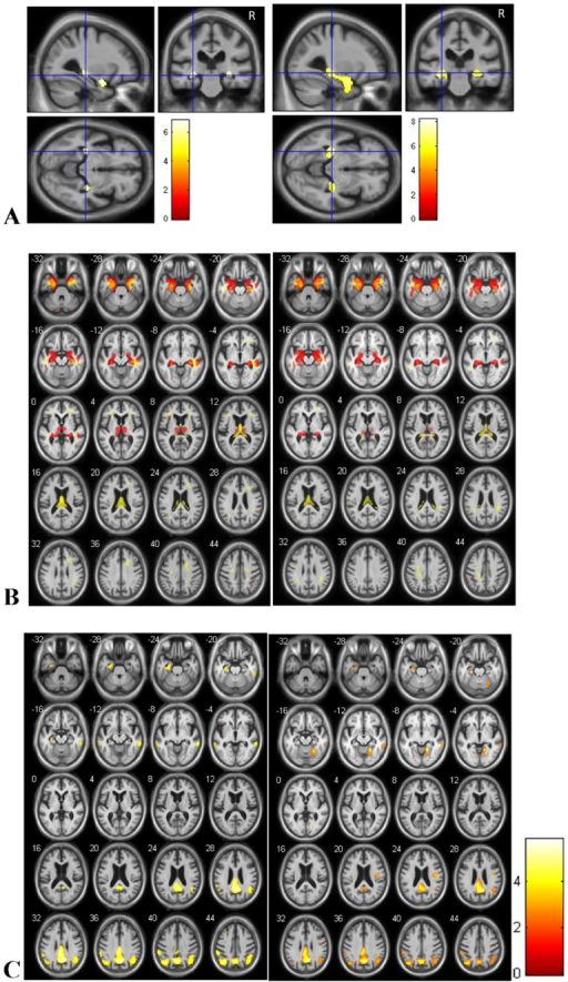 Brain regions of relative atrophy of AD patients with hallucinations compared to healthy controls (A and B left) and AD patients without hallucinations compared to healthy controls (A and B right).Brain regions of relative hypometabolism of AD patients compared to healthy controls (C). (A: for gray matter only: T = p<0.05, correction FWE, minimum cluster size = 25 voxels; B: T = p<0.001, without correction, minimum cluster size = 25 voxels; C. T = p<0.001, without correction, minimum cluster size = 25 voxels) A. The relative atrophy involves hippocampi and amygdalas for the two AD groups, for the analysis with correction. B. The relative atrophy of gray matter (red) and white matter (yellow) involves also input and output pathways of the hippocampi including amygdalas, entorhinal cortex, fornix, thalami and cingulate gyrus. C: Relative hypometabolism (FDG PET) of AD-hallu (left) and AD-c (right) compared to healthy controls. Right is right.