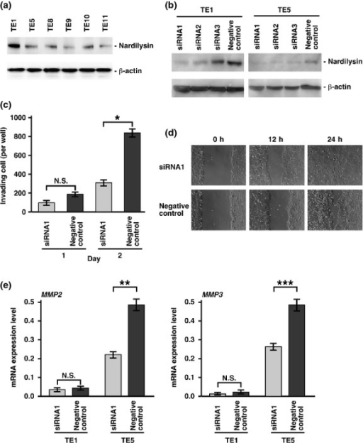 Functional analysis of nardilysin in esophageal cancer cell lines. (a) Western blot analysis of nardilysin in six esophageal cancer cell lines. (b) Western blot analysis of nardilysin in cell lysates from TE1 and TE5 cells transfected with NRD1 siRNA (siRNA1–3) and negative control siRNA. (c) Effect of NRD1 knockdown on cell invasion of TE1. TE1 cells transfected with NRD1 siRNA1 and negative control siRNA were incubated in Boyden chambers. After 1 and 2 days, invading cells were counted. Bars and error bars indicate mean and SE of three different experiments. (d) Wound healing assay in NRD1 knockdown TE1 cells and negative control siRNA-transfected TE1 cells. TE1 cells transfected with NRD1 siRNA1 or negative control siRNA were wounded. (e) Quantitative reverse transcription–polymerase chain reaction (qRT-PCR) analysis of MMP2 and MMP3 mRNA in TE1 and TE5 cells transfected with NRD1 siRNA1 or negative control siRNA. Bars and error bars represent mean and standard error (SE) of three different experiments. N.S., not significant. *P = 0.0244; **P = 0.0200; ***P < 0.0200.
