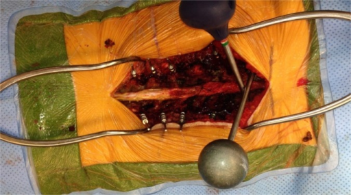 Intraoperative photograph demonstrating the trajectory of both pedicle probes.