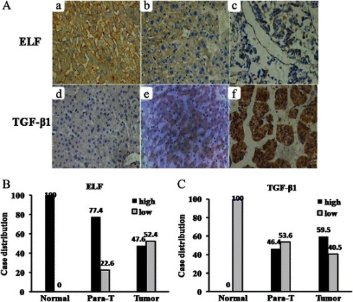 Expression of ELF and TGF-β1 protein. (A) Immunohistochemical staining in different tissues is shown. Normal liver tissues (Aa and Ad), HCC adjacent tissues (Ab and Ae), HCC tissues (Ac and Af) (original magnification × 400). (B) and (C) Case distribution of ELF/TGF-β1 expression in normal liver tissues (Normal), HCC adjacent tissues (Para-T) and HCC tissue (Tumor).