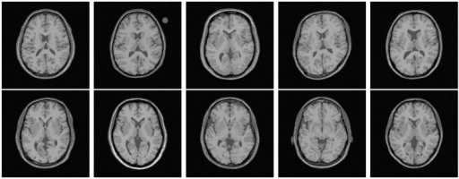 Original images of BrainWeb for subject no. 4, 5, 6, 43, 45, 47, 48, 49, 50, and 51.