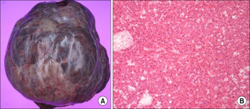 Gross and microscopic findings showing a pedunculated hepatic mass (A) and a microphotopraph representing hepatocellular carcinoma (HE ×200) (B).