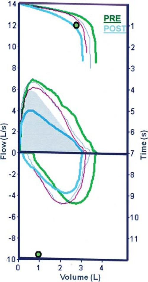 Flow-volume and volume/time charts of the subject who was most reactive pre- and post-NPT with D. pteronyssinus (a 28-year-old woman who had an NPT-SS = 10; PEFdif% = −42%; FVCdif% = −17%; FEV1-FVCdif% = −9%, and FEV1dif% = −25% after allergen-specific NPT).