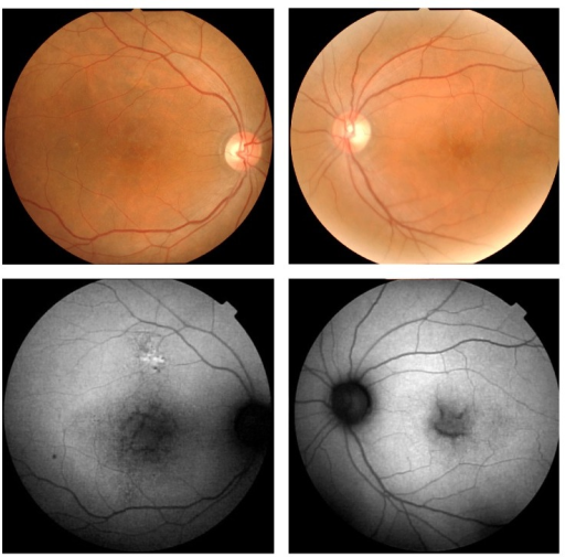 Fundus photographs and fundus autofluorescence (FAF) images of a patient with X-linked retinoschisis (XLRS). Fundus photographs show spoke wheel-like maculopathy in the left eye and central atrophy in the right eye. The FAF images show hypofluorescent areas in both maculas.