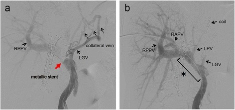 Portography. a Portal vein stenosis (a red arrow) with collateral veins from the left gastric vein are shown (dotted black arrows). b After performing a portal vein stenting and left portal vein embolization, the portal vein stenosis was resolved. LGV left gastric vein, RAPV right anterior portal vein, RPPV right posterior portal vein, LPV left portal vein, asterisk metallic stent placed in the portal vein