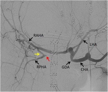 Angiography. The right posterior hepatic artery is disrupted at the hepatic hilum (a red arrow), and there is a collateral artery (a yellow arrow) from the right anterior hepatic artery to the right posterior hepatic artery. CHA common hepatic artery, GDA gastroduodenal artery, LHA left hepatic artery, RAHA right posterior hepatic artery, RPHA right posterior hepatic artery
