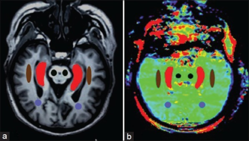 T1-weighted image (a) and amide proton transfer image (b) were oblique axial planes along the long axis the hippocampi (Hc). Examples of the definition of the regions of interest for quantitative analysis (Brown: Temporal white matter; Purple: Occipital white matter; Black: Cerebral peduncle; Red: Hc).