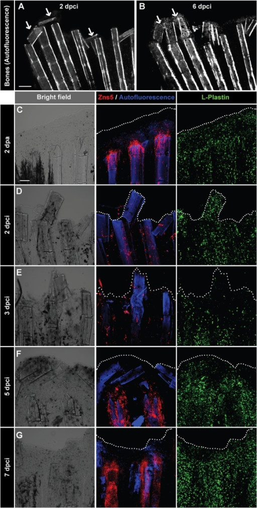 Detachment of the destroyed fin tissue is associated with displacement and resorption of the dead bone fragments at the wound margin. (A,B) Imaging of bones in the same fin detected by autofluorescence of the mineralized matrix at 2 and 6 dpci. The margin of the remnant fins contains detached and displaced bone fragments between the rays that become resolved (arrows). N=5. (C-G) Confocal imaging of whole-mount fins immunostained with the osteoblast marker Zns5 (red), phagocyte marker L-plastin (green) and autofluorescent bone matrix (blue) at 2 dpa (C) and at different time points after cryoinjury (D-G). At 2 dpa (C), Zns5-labelled osteoblasts accumulate at the tip of the bone to initiate bone regeneration. L-plastin-expressing cells are present in the entire tissue. At 2 dpci (D) and 3 dpci (E), osteoblasts are scattered along the bones in irregular manner. At 5 dpci (F), Zns5-positive cells are enriched at the tips of the intact bones, below the margin of the stump that contains bone debris devoid of osteoblasts. At 7 dpci (G), Zns5 immunostaining is robustly enhanced along the remaining bones, indicating resumed regeneration. L-plastin-expressing cells are associated with the repairing and regenerating tissue. N=4. Scale bar in A=200 µm, in C=100 µm.