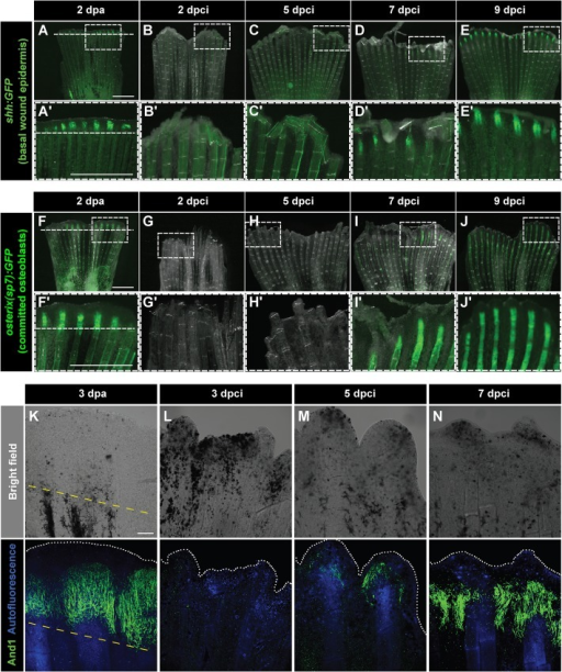 Dynamics of bone and actinotrichia regeneration in cryoinjured fins. (A-E′) Live-imaging of shh:GFP transgenic fish demarcates a subset of cells in the basal layer of the lateral wound epidermis (green) at 2 dpa (A) different time points after cryoinjury (B-E). Dashed line indicates the plane of amputation. The expression of shh:GFP becomes detectable starting at 7 dpci (D,D′), indicating organization and subdivision of the basal epithelium. N=4. Boxes in A-E magnified in A′-E′. (F-J′) Live-imaging of transgenic fish osterix(sp7):GFP highlights intermediately differentiated osteoblasts (green) at 2 dpa (F) and at different time points after cryoinjury (G-J). The expression of osterix(sp7):GFP becomes detectable starting at 7 dpci (I,I′), indicating bone regeneration. N=4. Boxes in F-J magnified in F′-J′. (K-N) Bright-field (upper panels) and confocal (lower panels) images of whole-mount fins immunostained with anti-And1 antibodies (green) at 3 dpa (K) and at different times after cryoinjury (L-N). Bone matrix is detected by autofluorescence (blue). The bright-field images show dark necrotic tissue at the margin of cryoinjured fins. The expression of And1 starts at 5 dpci (M) and becomes more evident at 7 dpci (N). N=4. Yellow dashed line indicates the amputation plane. Scale bar in A=1 mm and in K=100 µm.