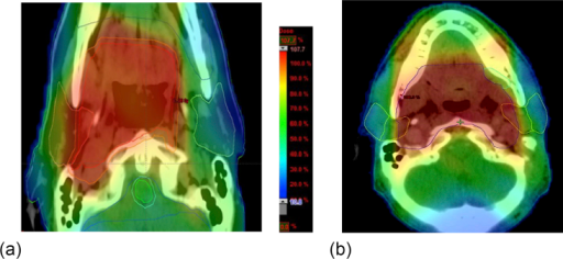 (a) Axial computed tomography image of contralateral parotid-sparing intensity-modulated radiotherapy (CLPS-IMRT) for a right lateral pharyngeal wall tumour. Colour wash: red-orange = high dose (95–100% of prescribed dose), blue = low dose (20–30% of prescribed dose). The IMRT technique used also produces a dose gradient across the ipsilateral parotid gland on the right, thus allowing modest sparing of the right superficial lobe. (b) Axial computed tomography image of bilateral superficial lobe parotid-sparing intensity-modulated radiotherapy (BSLPS-IMRT) for a midline tumour of the base of tongue. Colour wash: red-orange = high dose (95–100% of prescribed dose), blue = low dose (20–30% of prescribed dose). The deep lobes of both parotid glands are included in the high dose region because of their close proximity to the parapharyngeal spaces.