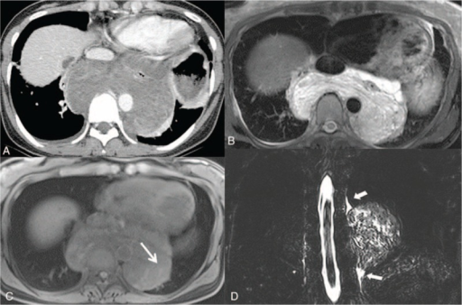 Cavernous lymphangioma in a 41-year-old female. A, Enhanced axial CT scan demonstrates a well-defined homogenous low attenuating mass encasing the esophagus in the posterior mediastinum. B, T2-weighted MR imaging shows high signal intensity with a multilocular septum within the mass. C, T1-weighted MR imaging shows an isosignal intensity with faint high signal intensity (white arrow), which led to suspicion of hemorrhage. D, Coronal heavily T2-weighted maximum intensity projection (MIP) image reveals continuation between the thoracic duct (arrow head) and mass. CT computed = tomography, MR = magnetic resonance.