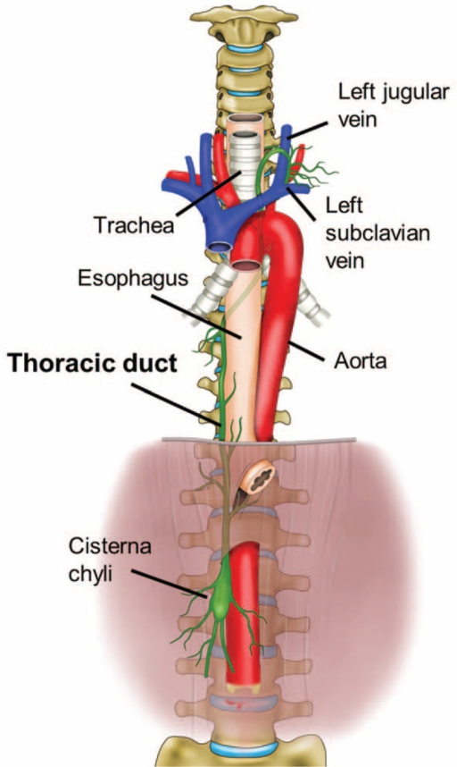 Schematic illustration of the anatomical course of the thoracic duct. The thoracic duct is a continuation of the cisterna chyli from its abdominal segment into the thorax. Typically, the lymphatic pathway originates in the cisterna chyli and enters into the thoracic cavity thorough the aortic hiatus. In the thorax, the thoracic duct ascends along the right anterior surface of the vertebral column between the aorta and the azygos vein posterior to the esophagus. At the T5 to T6 vertebral level, it crosses left of the midline and extends posterior to the aortic arch. It has a close relationship with the trachea, ascends approximately 2 to 3 cm above the clavicle, and then crosses anterior to the subclavian and thyrocervical trunk, making an arch inferiorly. Finally, it terminates at the junction of the left subclavian vein and the internal jugular veins.